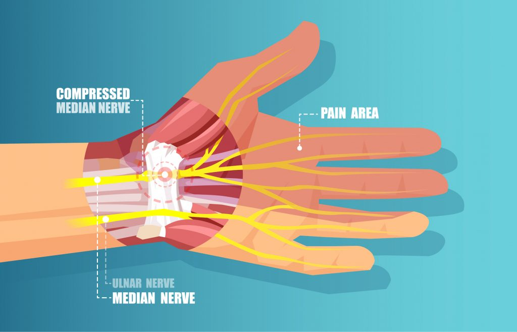 Medical illustration vector of a carpal tunnel syndrome with median nerve compression